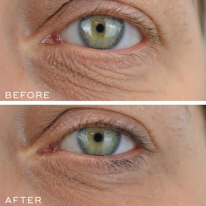 Eye Results