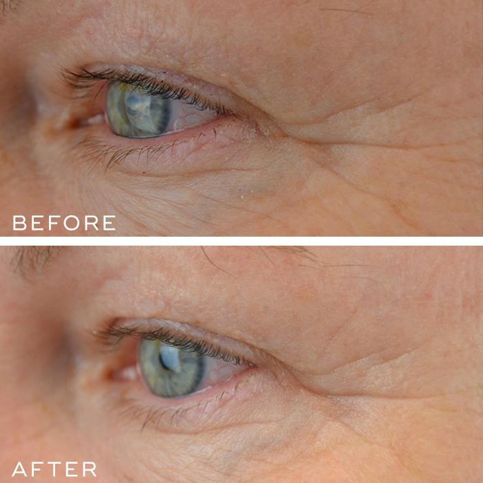 Eye System Results